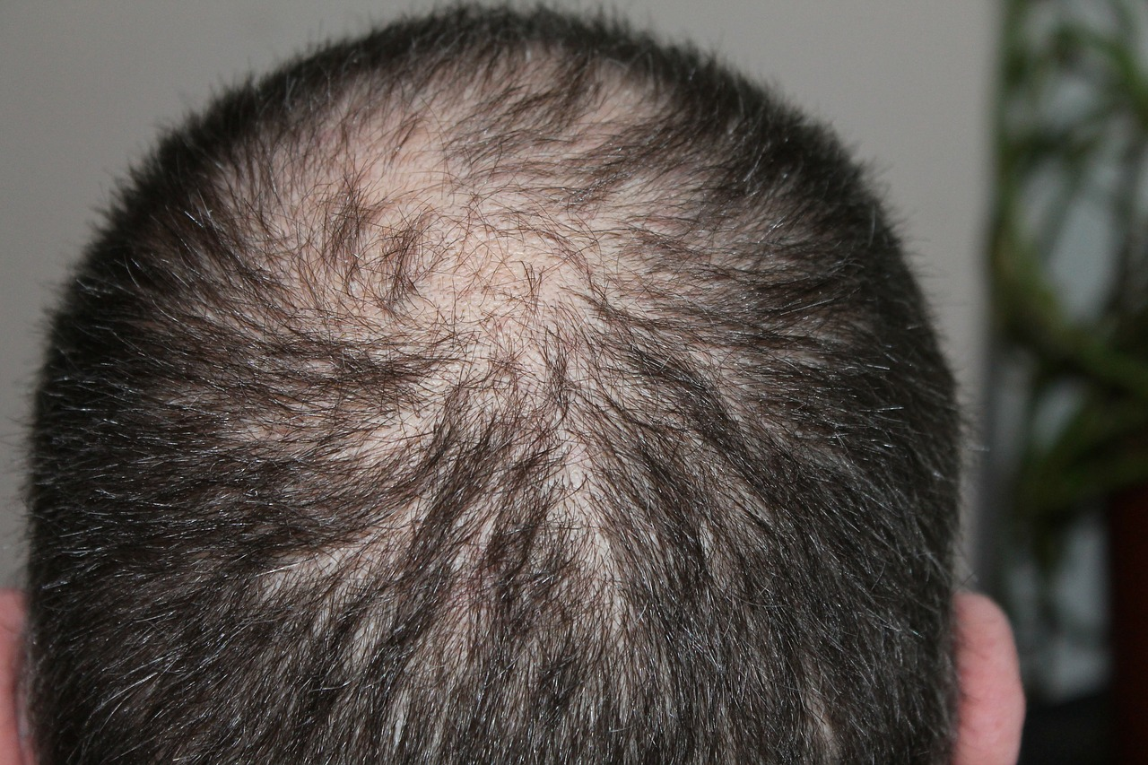 Apa Artinya Mimpi Rambut Rontok?